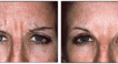 Frownlines treated with antiwrinkle injections.