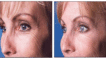Crowsfeet treated with antiwrinkle injections.