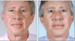 Before and 4 months post male facelift and blepharoplasty. Note the natural result
