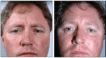 Before and 6 months after Conservative Upper Blepharoplasty