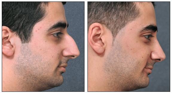 Nose Job Surgery & Rhinoplasty in Sydney