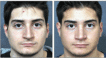 Before and 6 months after Rhinoplasty