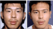 Before and 6 months after Otoplasty