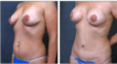 Before and 6 weeks post Mummy Makeover Periareolar Benelli Mastopexy and Abdominoplasty