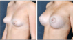 Tuberous Breast corrected with mango procedure and partial submuscular 340cc high profile saline implants. 6 months post op.