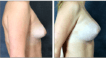 Tuberous Breast corrected with mango procedure and bilateral 340cc high profile saline. 6 months post op.