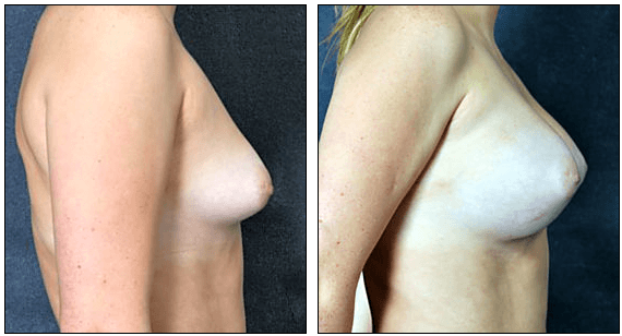 Before After Breast Augmentation