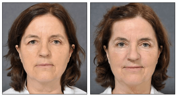 Lower Eyelid Removal Surgery