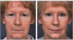Before and 6 months after upper and lower Blepharoplasty