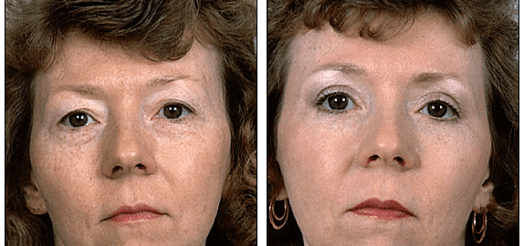 The Possible Long-Term Unwanted Effects of Injectable Fillers Around the Eyes