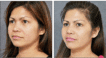 Before and 6 months after Oriental Rhinoplasty with Bone Grafting