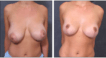 Before and 6 months after Breast Reduction