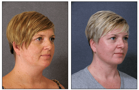 Neck Liposuction Before After
