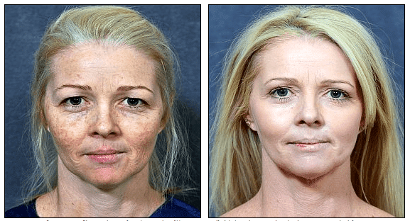 Dermabrasion - Mayo Clinic