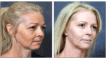 Before and 3 months After Full Face Resurfacing