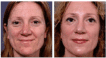 Before and 4 months after full face resurfacing - Dermabrasion, Laserbrasion and Chemical Peel