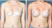 Breast Augmentation and Inverted Nipple Repair