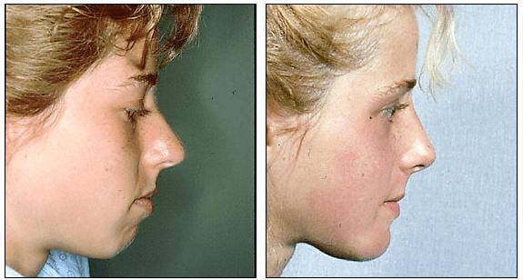 rhinoplasty with chin implant