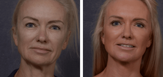 Natural Facelifts When Non-Surgical Options Become Ineffective