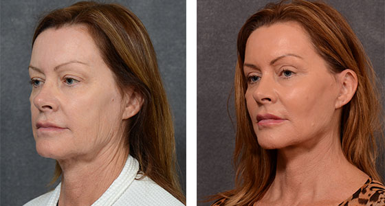 How Can I Get Rid Of My Sagging Jowls Dr Hodgkinson