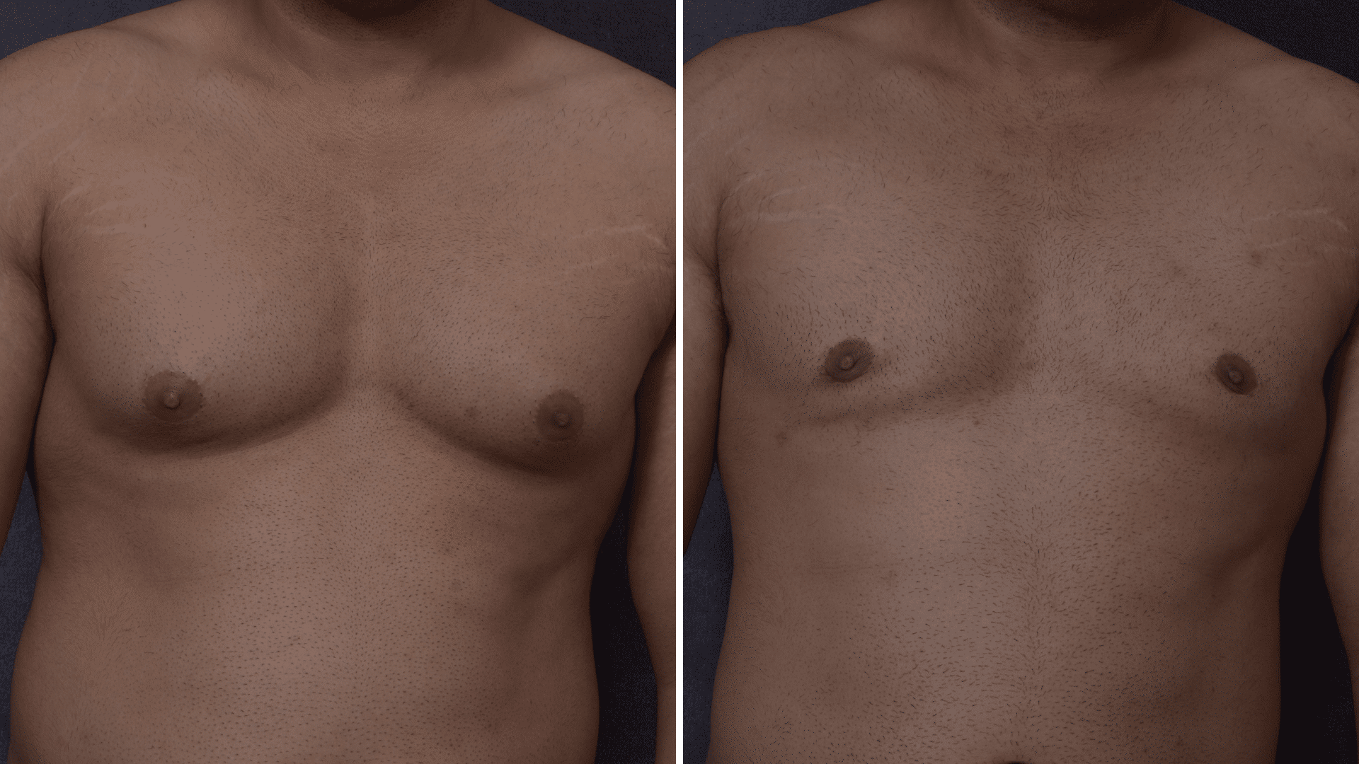 Before and one year post gynecomastia
