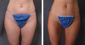 Before and after 6 months, liposculpture to the hips, abdomen, buttocks, inner and outter thighs
