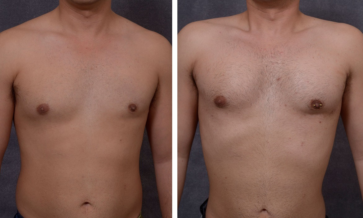 Pectoral Implants Before After