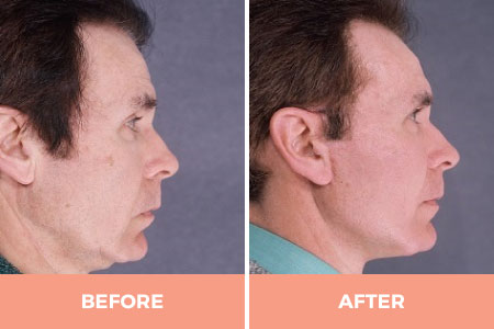 Before and 6 months after neck liposuction & lift for men