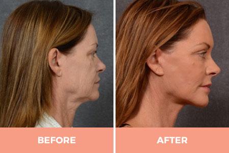neck lift surgery cost