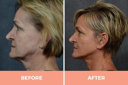 neck lift surgery sydney