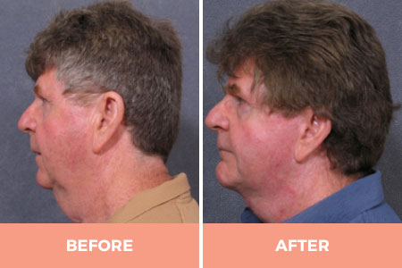 Before and 6 months after neck lift