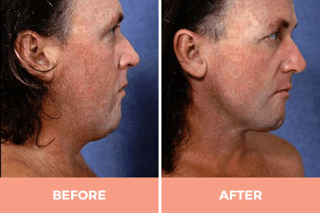 neck liposuction before and after