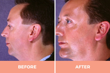 neck liposuction cost