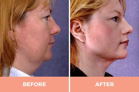 neck liposuction sydney