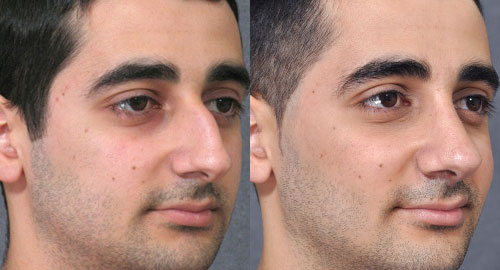 nose reshaping men