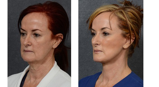 Before & After Facelift by Dr Hodgkinson
