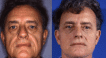 Before and 3 months post upper and lower blepharoplasty and facelift.