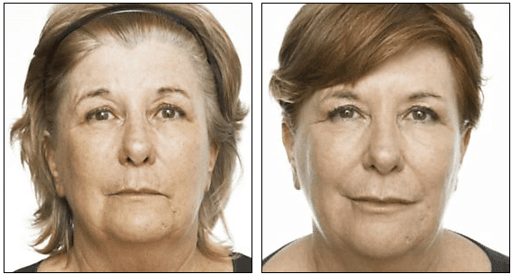 Injectible Fillers Before After