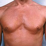 Body Implants