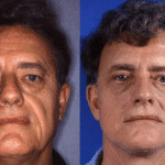 Male Facelift - The Facts