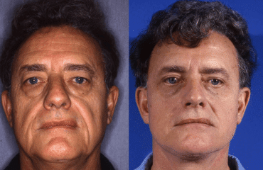 Male Facelift – The Facts