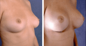 Breast Augmentation: C cup 320 cc Round Smooth Saline