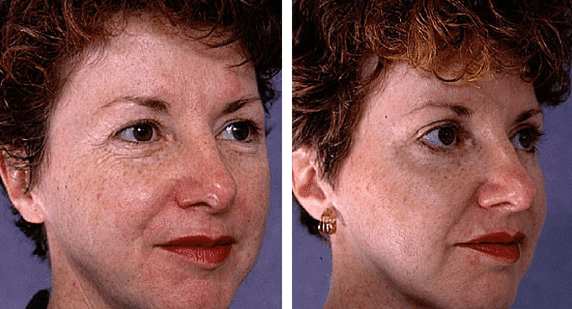 Blepharoplasty Sydney, Eyelid Surgery by Facial Surgeon|Dr