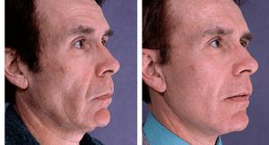 male-facelift