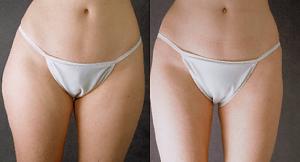 liposuction-lipsculpture