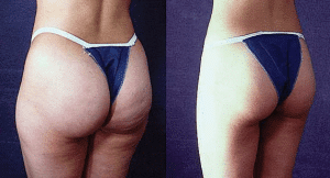 liposuction-liposculpture