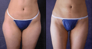 liposuction-liosculpture