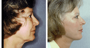 natural-facelift