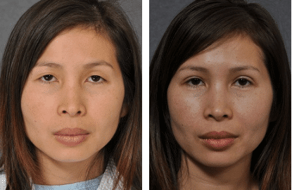 What are double eyelids and eyelid fold surgery?