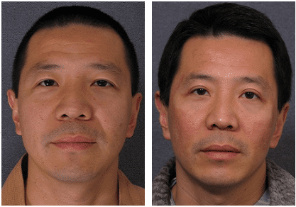 What are double eyelids & eyelid fold surgery?